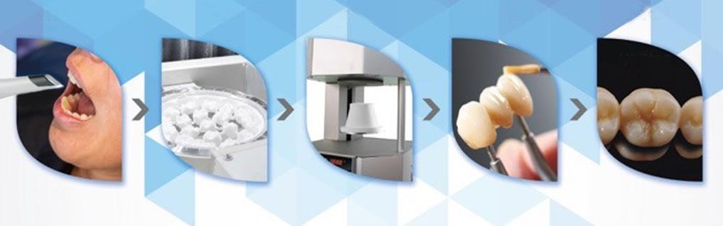 Labo vối hệ thống CAD/CAM. Kết hợp in 3D nha khoa. Sẽ đem đến cho Quý khách một phục hình chính xác và độ thẩm mỹ tối ưu.
