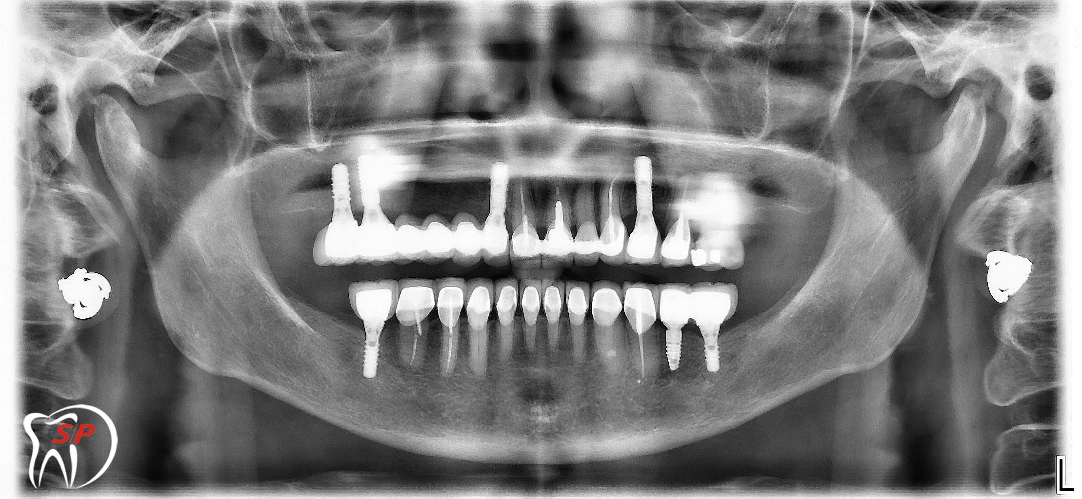 Implant riêng lẻ