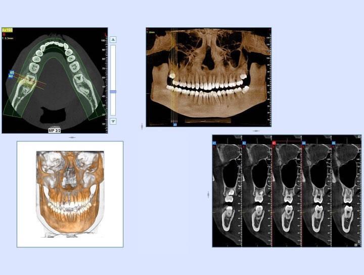 phan-mem-implant